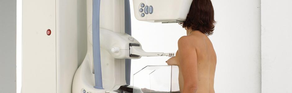 Μαστογραφία
