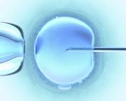 Εξωσωματική γονιμοποίηση (IVF)